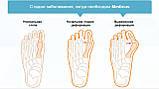Гелевая накладка-корректор для большого пальца ноги Valgus pro (Medicus) Оригинал, фото 3