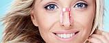 Клипса для коррекции формы носа, фото 3