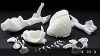 3D друк в медицині
