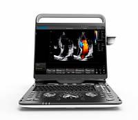 Ультразвуковой сканер Ebit 60