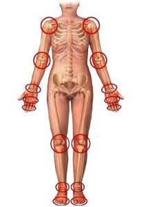 Кістково-м'язова система (опорно-рухова система)