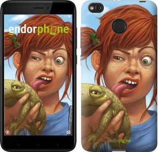 """Чехол на Xiaomi Redmi 4X Рыжеволосая девочка с лягушкой """"4059c-778-2911"""""""