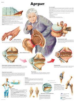 Анатомический плакат 67х50см. (артрит)