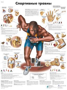 Анатомический плакат 67х50см. (спортивные травмы)
