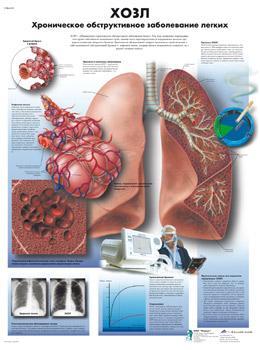 Анатомический плакат 67х50см. (ХОЗЛ)