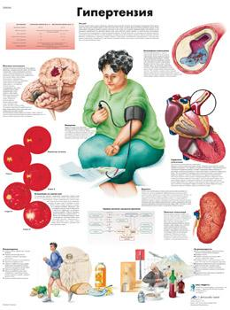 Анатомический плакат 67х50см. (гипертензия)