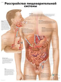 Анатомический плакат 67х50см. (расстройство пищеварительной системы)