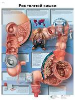 Анатомический плакат 67х50см. Код.ZVR6432L (рак толстой кишки)