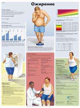 Анатомический плакат 67х50см. (ожирение)