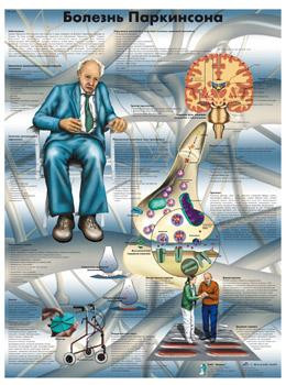 Анатомический плакат 67х50см. (болезнь Паркинсона)
