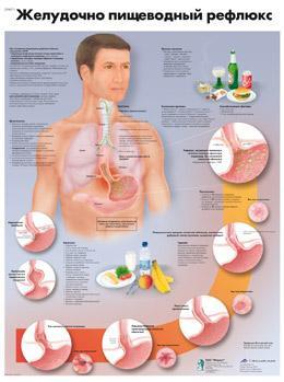 Анатомический плакат 67х50см. (желудочно-пищевой рефлюкс)