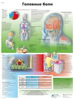 Анатомический плакат 67х50см. (головные боли)