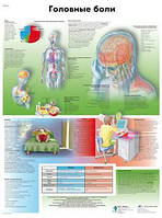 Анатомический плакат 67х50см. Код.ZVR6714L (головные боли)