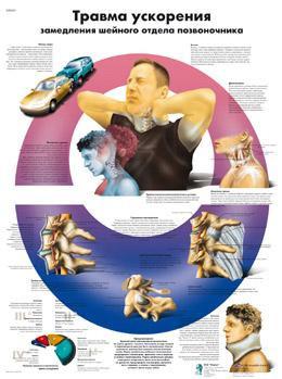 Анатомический плакат 67х50см. (травма ускорения)