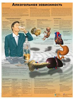 Анатомический плакат 67х50см. (алкогольная зависимость)