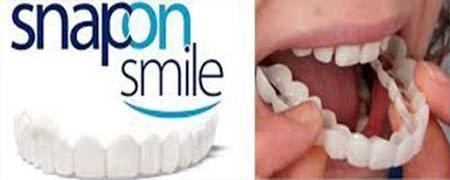 Snap-On Smile – удобные съемные виниры