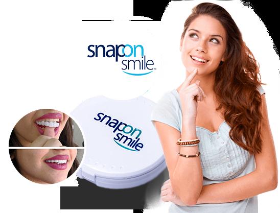 Snap-On Smile — съемные виниры для красивой улыбки