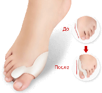 Средство от косточки на ноге Gel Nexus