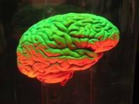 Как правильно поставить диагноз? Нервная система.