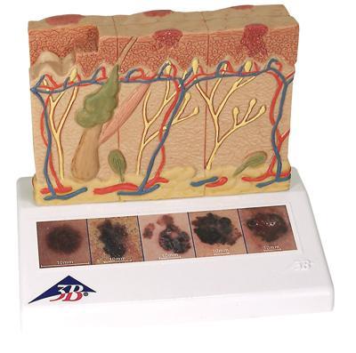Модель меланомы кожи.