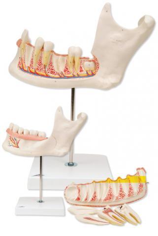 Половина нижней челюсти, трехкратное увеличение, 6 частей.