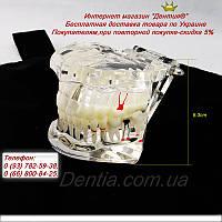 Модели верхней и нижней челюстей с патологией и протезами  1:1