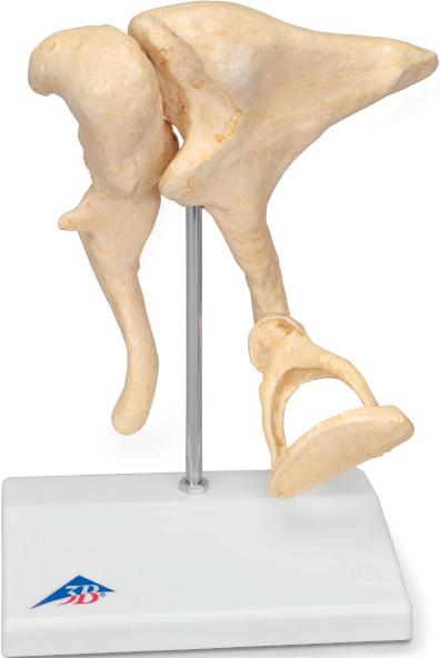 Модель слуховых косточек человека по результатом томографического исследования.