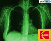Рентгеновская пленка KODAK MXB Film (КОДАК) Зеленочувствительная, фото 1