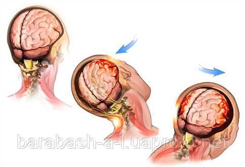 Картинки по запросу сотрясение мозга