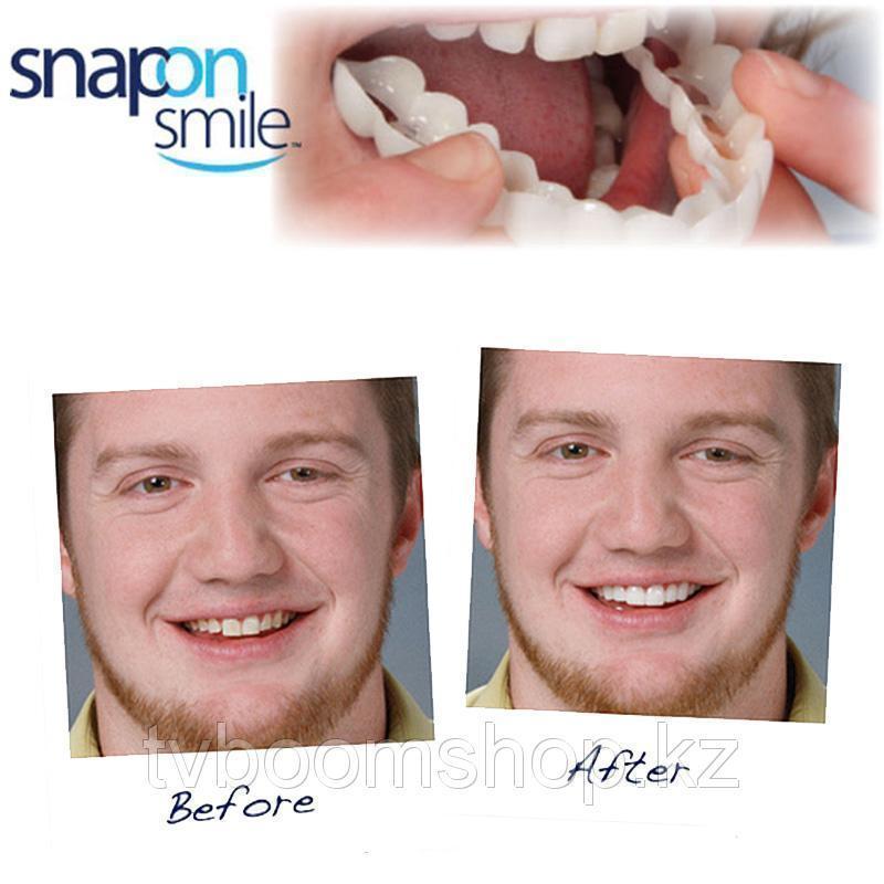 Накладні зуби. Snap on Smile