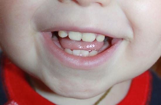 Молочні зуби у дітей.Картинка 14.