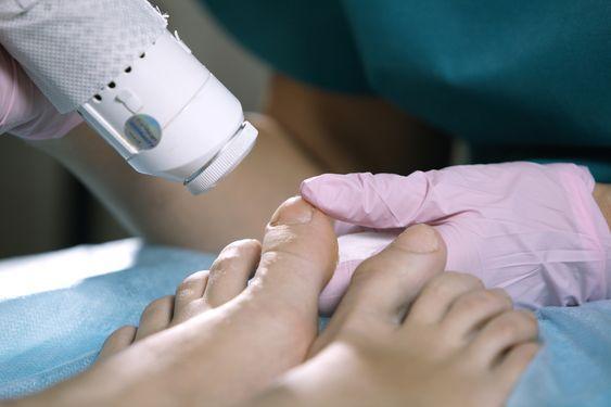 Лечение грибка ногтей Харьков (онихомикоз), лазером, цена от 100 грн