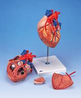Сердце с шунтированием, 2-х кратное увеличение, 4 части.