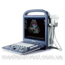 Портативный ультразвуковой сканер SonoScape S2