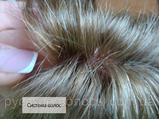 Система волос фото.
