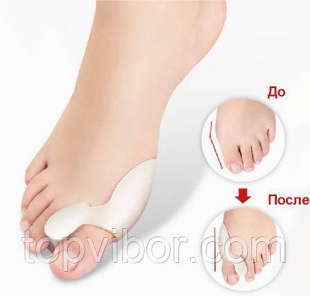 🔝 Лечебный фиксатор большого пальца Valgus Pro Medicus (Вальгус Про) - пара, для коррекции косточки | 🎁%🚚