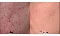 Микродермабразия - безболезненный метод от рубцов, морщин, шрамов, пигментных пятен