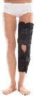 Бандаж для коленного сустава  тутор , тип 512 А