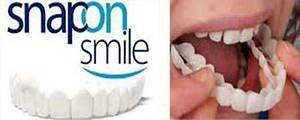 Съемные виниры элайнеры Veneers Snap-on smile   виниры для зубов   накладные зубы