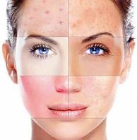 Выбираем лучшую уходовую косметику - как выбрать космептику по типам кожи
