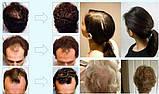 Andrea - краплі для зростання і зміцнення волосся (Андреа), фото 5