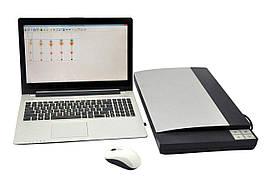Денситометр серии SORBFIL с применением планшетного сканера