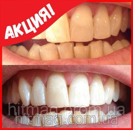 Система домашнего отбеливания зубов White Light