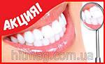 Система домашнего отбеливания зубов White Light, фото 4