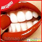 Система домашнего отбеливания зубов White Light, фото 6