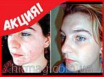 Сияние кожи - крем отбеливающий витаминизированный, фото 4