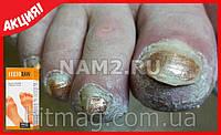 """Масло """"Feetoxan""""от грибка стопы и ногтей"""
