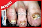 Экзолоцин для полного излечения от грибка стоп и ногтей, фото 4