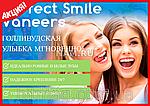 Инновационные виниры Perfect Smile Veneers (съемные), фото 4