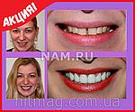 Инновационные виниры Perfect Smile Veneers (съемные), фото 9